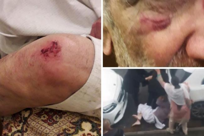 'They are cowards' Pensioner, 78 beaten and kicked whilst on ground